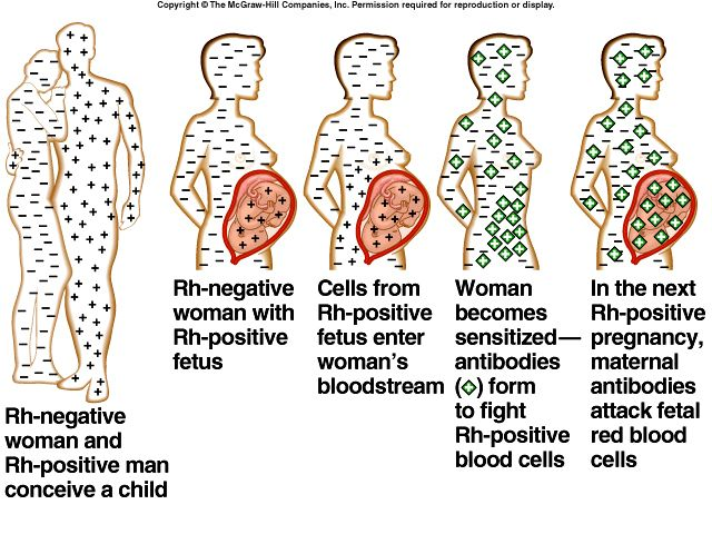 Rh factor in mother and fetus: a visual explanation of this ...